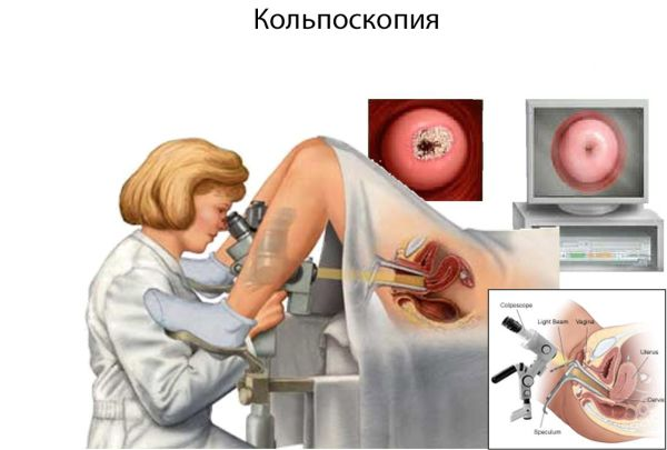 что такое кольпит в гинекологии