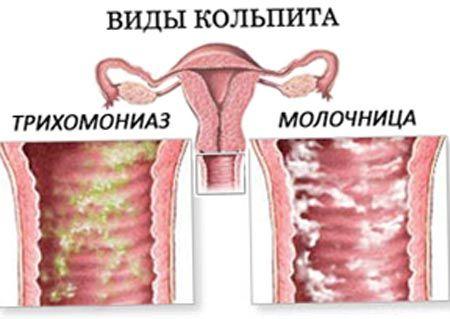 Молочница зелёного цвета при беременности