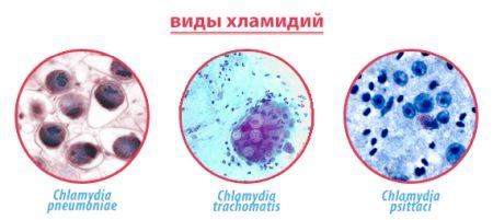 Фото хламидиоза у детей