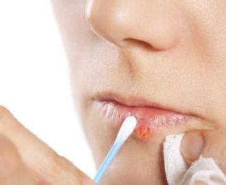 Чем можно быстро вылечить вирус герпеса на губах