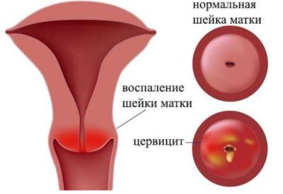гинекологические патологии