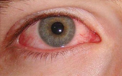 Герпес на глазах (офтальмогерпес) и его лечение