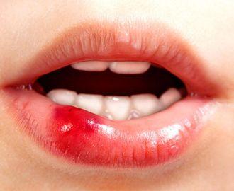 Как лечить герпес на внутренней стороне губы?