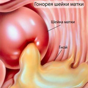 гонорея у девочек - симптомы