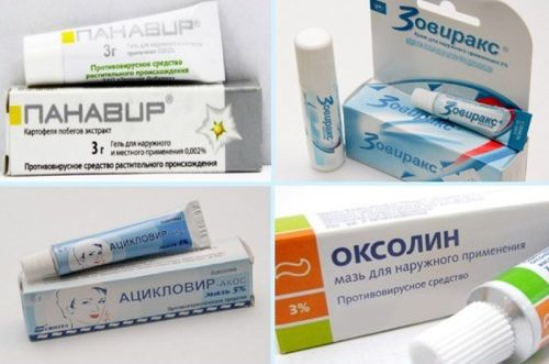 Мазь от герпеса на губах для эффективного лечения
