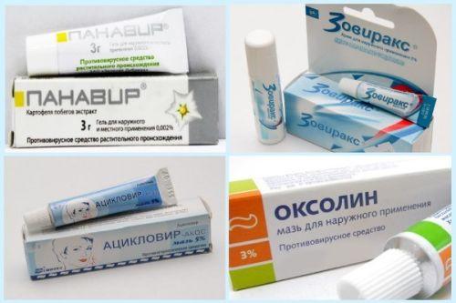 Таблетки от герпеса на губах: обзор лучших лекарств для лечения простуды на губах