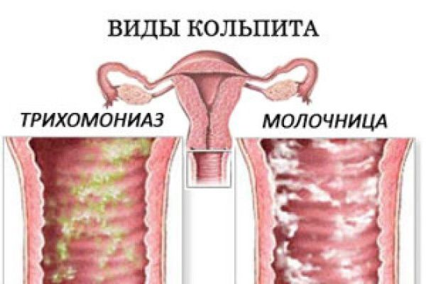 Признаки и способы лечения дрожжевого кольпита