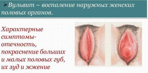 Вульвит лечение какими мазями