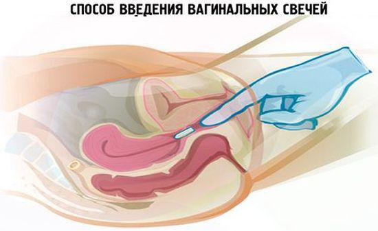 После гексикона молочница при беременности