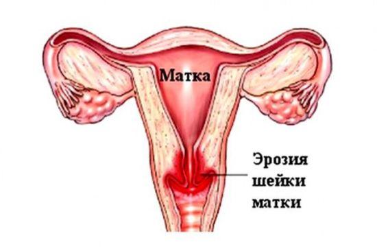 Чем опасна молочница для женщин