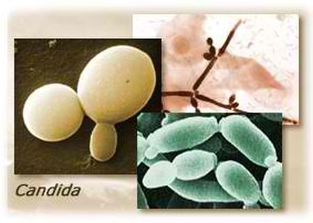 Грибок Кандида (Candida): диагностика и лечение