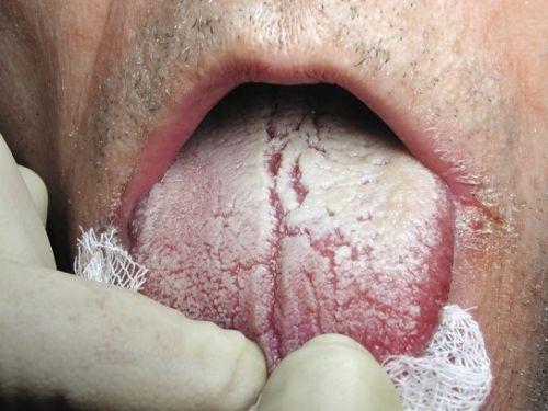 Молочница на языке у взрослых симптомы