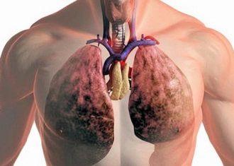 Признаки и лечение кандидоза легких