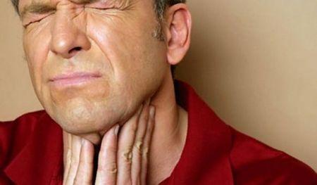 Молочница гортани у взрослых лечение