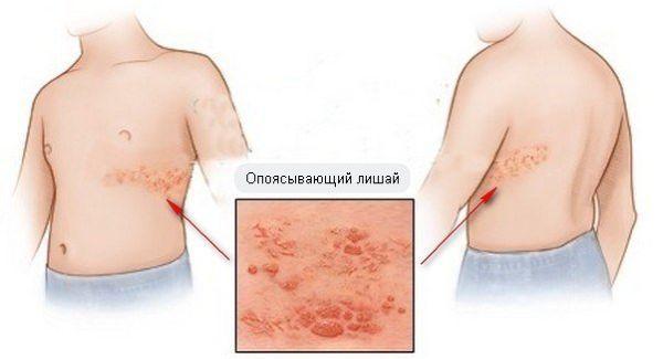 опоясывающий герпес - симптомы