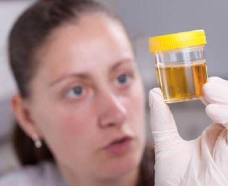 Основные причины неприятного запаха мочи у женщин и их лечение