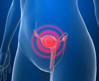 Какие симптомы и какое лечение аднексита у женщин?