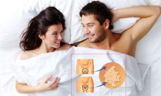 инфицирование молочницей половым путем