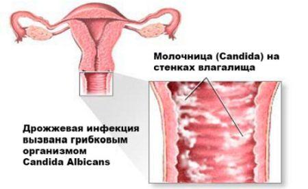 Признаки молочницы при беременности