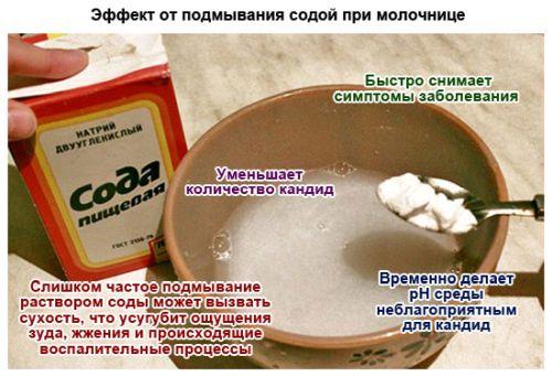 Как правильно делать спринцевание содой при молочнице