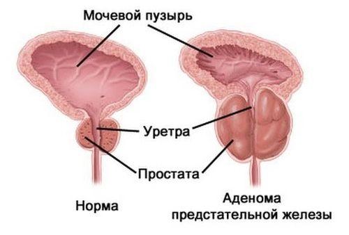 форма воспаления, определяющая клиническую картину