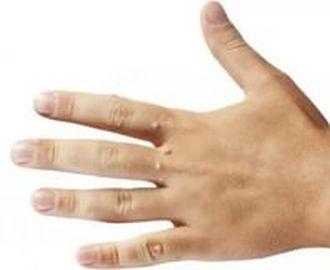 Как можно удалить бородавку на руке у ребенка