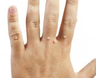 Особенности бородавок на пальцах и их лечение