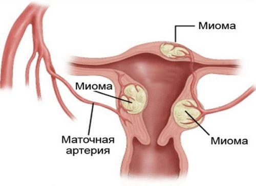 гормональные изменения при климаксе