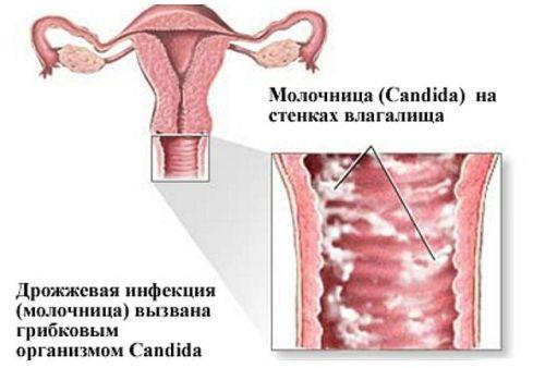Молочница у женщин – причины, симптомы, лечение