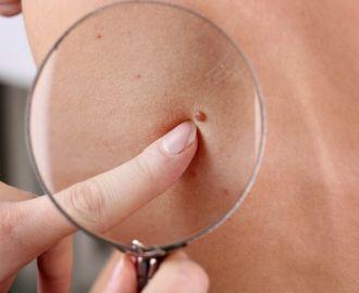 Как лечить папилломы у ребенка на лице и теле
