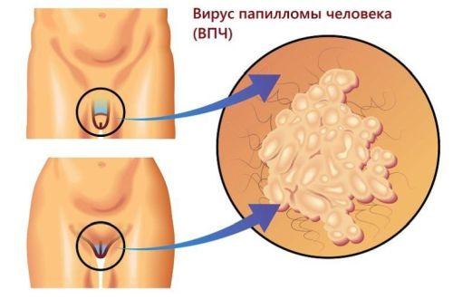 ВПЧ у женщин: как берут анализ, что это такое в гинекологии, как лечить