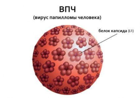 модель ВПЧ