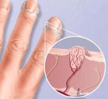бородавки на руках - симптомы