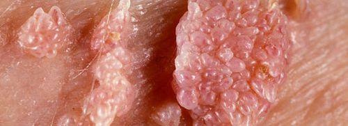 симптомы ВПЧ 56 типа