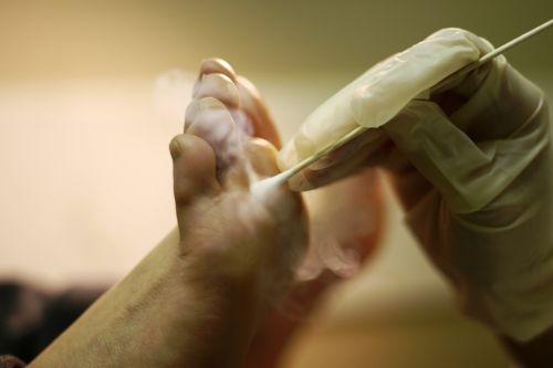 аппаратные методы удаления бородавок на ногах