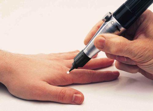 терапия папилломатоза
