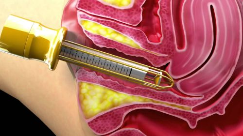 хирургическое удаление папилломы шейки матки