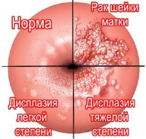 Что такое папиллома и как она выглядит, фото и лечение