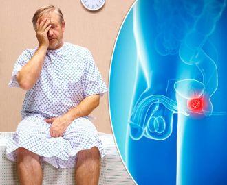 Какие причины и признаки рака простаты у мужчин, и как его лечить?
