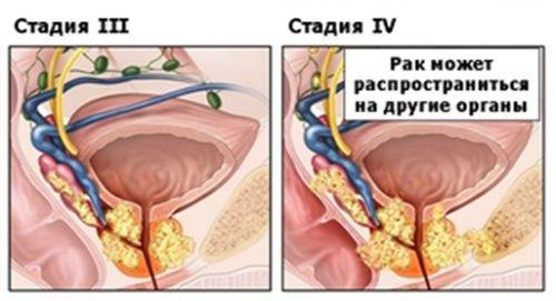 Рак предстательной железы: симптомы и лечение у мужчин на начальных и запущенных стадиях онкологии