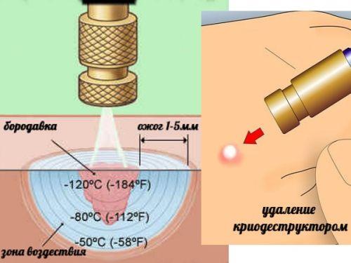 криотерапия при ВПЧ