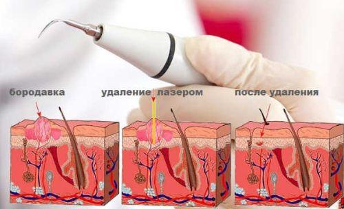 аппаратные методы удаления бородавок на стопе