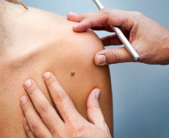 Как лечить папилломы с помощью медикаментов и хирургии