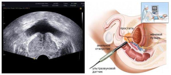 Как проявляется простата
