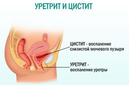 Моча мутная при беременности с осадком