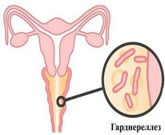 Нормы анализов на гарднереллу у женщин