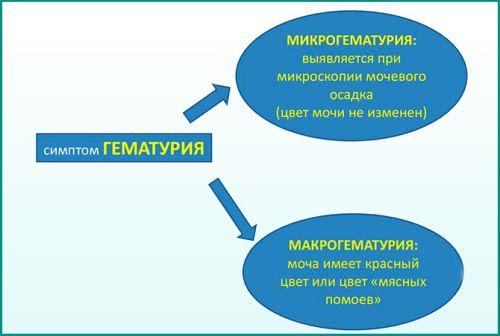 Кровь в моче у мужчин при мочеиспускании (гематурия) без боли: что это может быть, причины