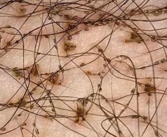 Как правильно лечить лобковые вши?