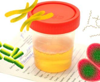 Что означает появление бактерий в моче, как лечится бактериурия?