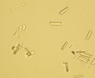 Что означает появление в моче аморфных фосфатов?